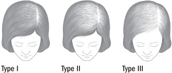 RevuCell Ludwig Scale of Female Hair Loss