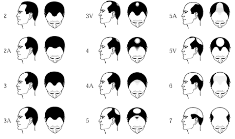 RevuCell Norwood Scale of hair loss